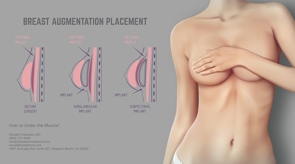 Breast Augmentation Implant Placement