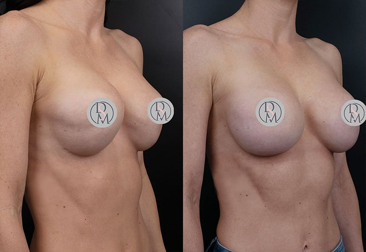 Breast Revision Angle