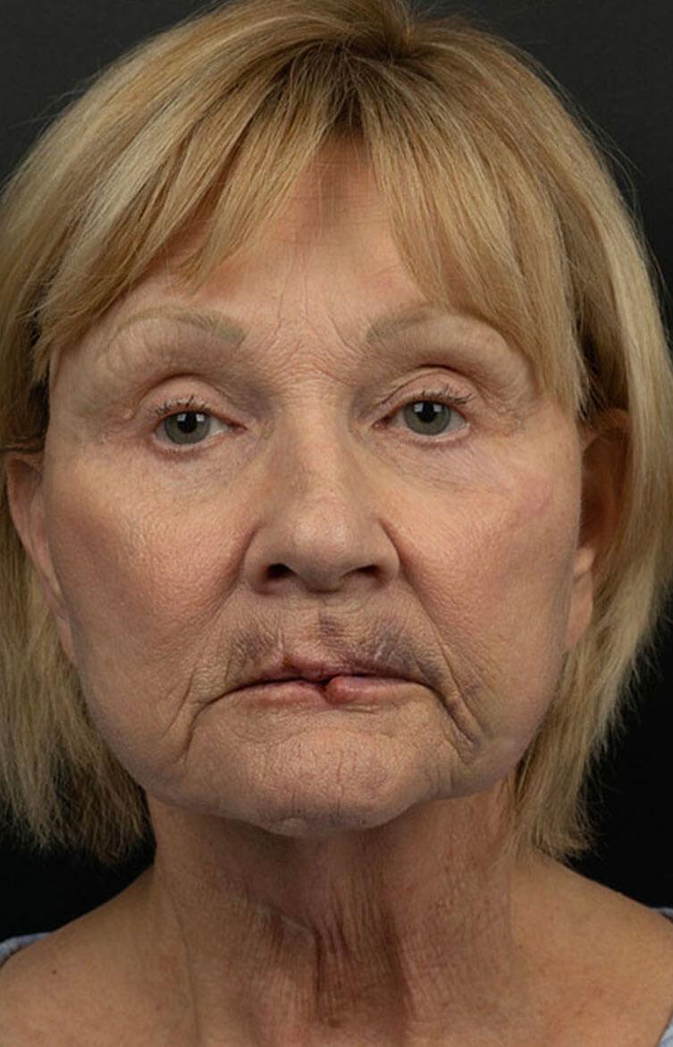 female laceration repair before